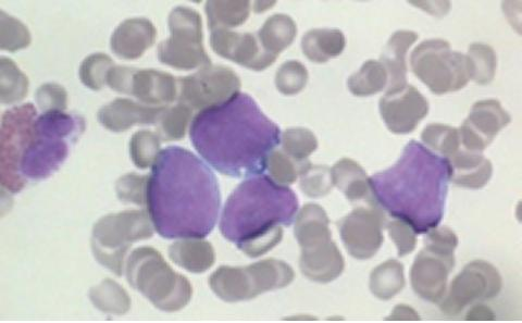 Picture of lymphoma cells