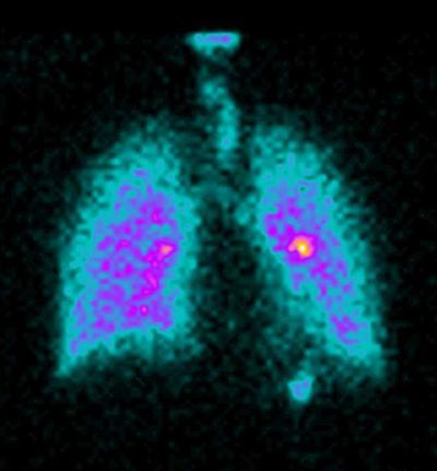 Drug deposits in the lungs