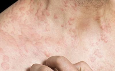 Chronic inflammatory skin condition