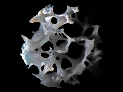 Human trabecular bone