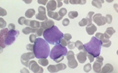 lymphoma cells
