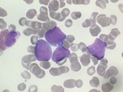 Lymphoma cells