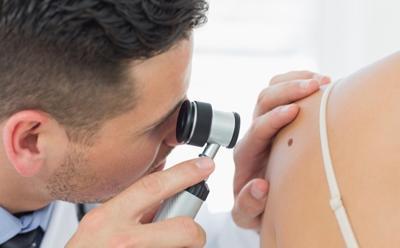 New drug for advanced melanoma