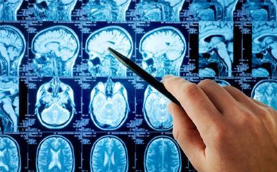 MRI brain X-ray