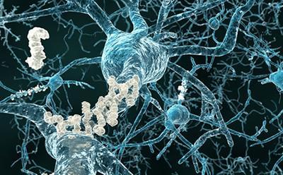 Vascular dementia study