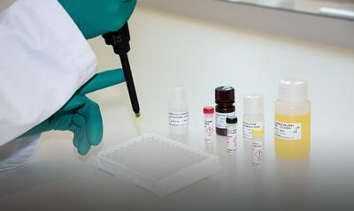 Antibody test