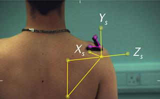 The bony landmarks of the shoulder blade (yellow) and the reflective markers used to track its movements (purple).