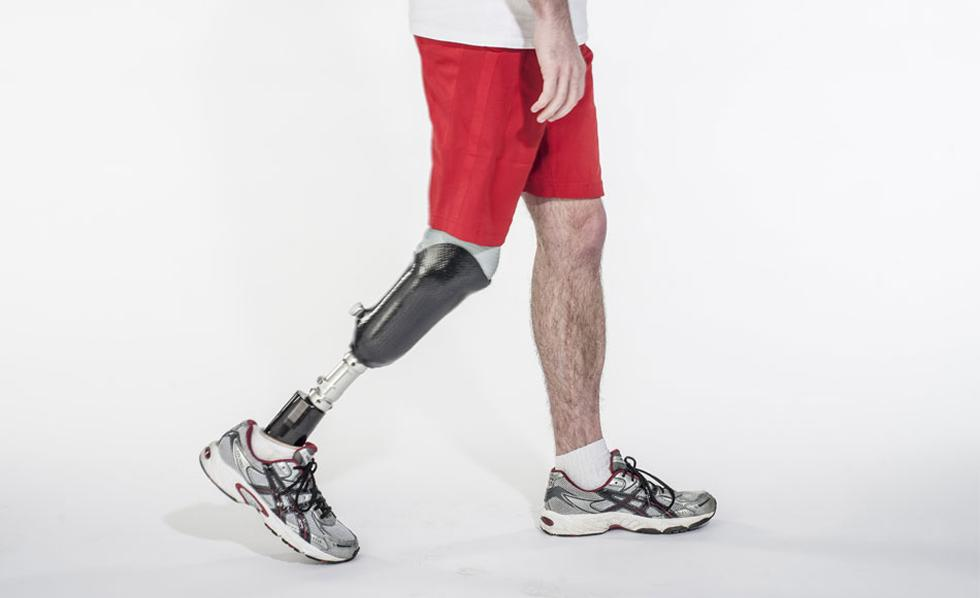 Man walking with prosthetic leg.